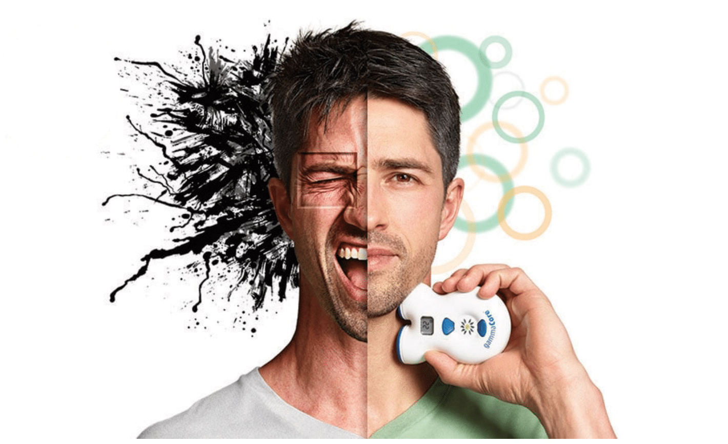 gammaCore nVNS for Cluster Headache and Migraine